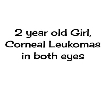 2 yr old Girl with Corneal Leukomas